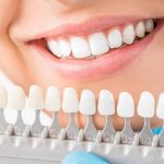 Reasons to acquire veneers